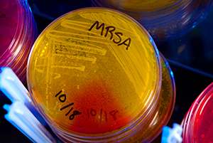 """Kinch recently participated in afast-paced two-part BBC World Service radio broadcast about antibiotic resistance, the failure to develop new antibiotics, and the omnipresence of resistant bacteria in the environment. Both parts of """"Antibiotic Resistance Crisis"""" are available online. Credit: CDC"""