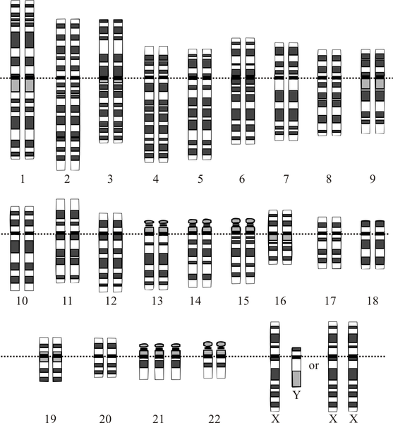 Down syndrome karyotype. Kredit: Wikimedia Commons.