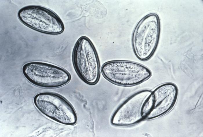 Vajíčka roupa dětského. Kredit: CommonsWikimedia