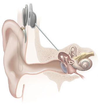 http://www.wikinfo.org/upload/6/6e/Cochlear_implant-1-.jpg