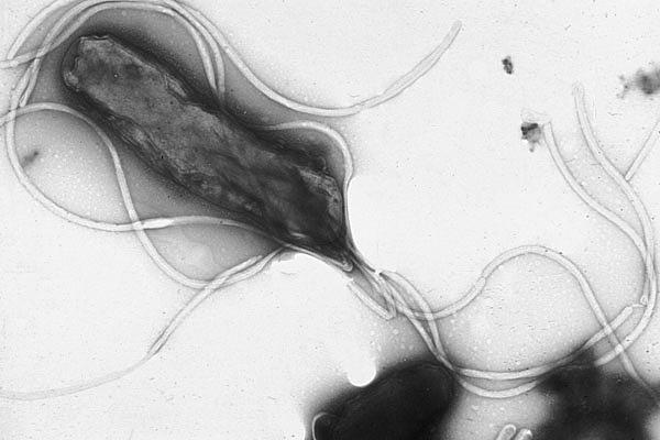 Electron micrograph of H. pylori possessing multiple flagella (negative staining)