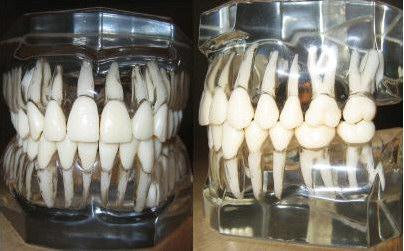 Zuby, naše slabé místo. Kredit: DRosenbach, Wikimedia Commons.