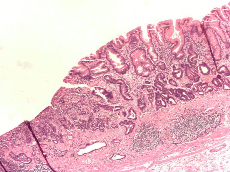 Karcinom žaludku. Kredt: WikimediaCommons