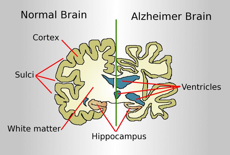 Alzheimer brain spopisem
