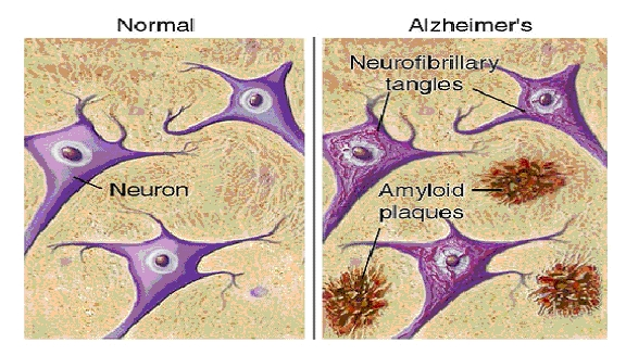 beta-amyloid