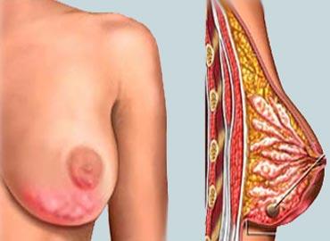 Rakovina prsu